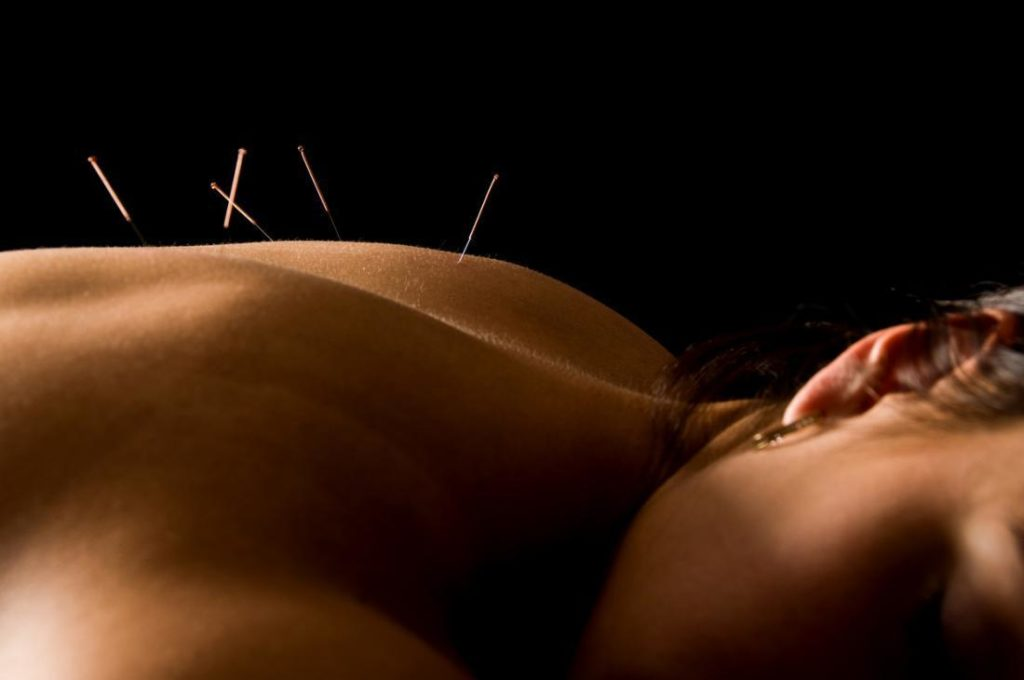 acupuncture involves inserting needles at certain points of the body 1024x680 - Bagaimana Cara Kerja Akupunktur?